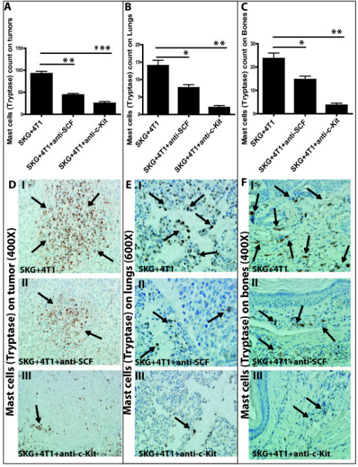 Significant reduction in number of mast cells (MCs) (tryptase staining) in the tumor, lungs, and bones of mice treated with anti-SCF or anti-ckit antibody. (A through C) Significant reduction in number of MCs in (A) tumors (**P < 0.01; ***P < 0.001), (B) lungs (*P < 0.05; **P < 0.01), and (C) bones (*P < 0.05; **P < 0.01) of treated mice. (D through F) Representative images of MCs tryptase in (D) tumors (400×), (E) lungs (600×), and (F) bones (400× magnification) (six mice per experimental group and 10 fields per section per organ). Brown staining represents MCs tryptase expression.