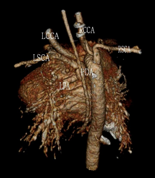 Preoperative three-dimensional 64-row multidetector computed tomography showed the LSCA arising from LPA via PDA. LSCA, left subclavian artery; LPA, left pulmonary artery; PDA, patent ductus arteriosus; LCCA, left common carotid artery; RCCA, right common carotid artery; RSCA, right subclavian artery.