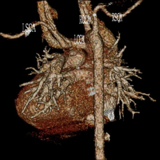 Postoperative three-dimensional 64-row multidetector computed tomography revealed LSCA arising from the LCCA without stenosis. LSCA, left subclavian artery; LCCA, left common carotid artery; RCCA, right common carotid artery; RSCA, right subclavian artery.