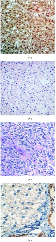 Representative images showing the presence of SALL4 protein in liver cancer and noncancerous tissue sections. (a) The positive expression of SALL4 in hepatocellular carcinoma tissues (the scoring is 2+); (b) the negative expression of SALL4 in liver tissues with chronic hepatitis B virus; (c) the negative expression of SALL4 in liver samples with liver cirrhosis; and (d) the negative expression of SALL4 in liver samples of health controls. (400x magnification).