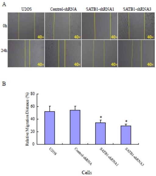 SATB1 Silencing decreased the cell migration. The cell migration assay and statistical analysis were carried out as described in the Materials and Methods. (A): A representative microscopic photograph of the cell migration. (B): Statistical results of cell migration. The data are expressed as the mean ± SD, N=9, *P < 0.05, versus non-silenced (Control-shRNA cells).