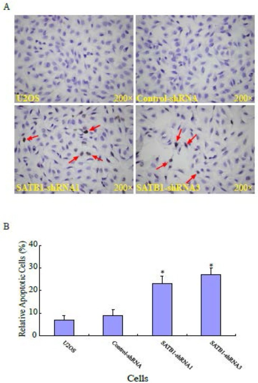 SATB1 silencing enhanced apoptosis of U2OS cells. The cell apoptosis assay and statistical analysis were carried out as described in the Materials and Methods. (A): A representative microscopic photograph of the cell apoptosis assay. (B): Statistical results on the percentage of apoptotic cells. The data are expressed as the mean ± SD, N=6, *P < 0.05, versus non-silenced (Control-shRNA) cells.