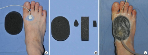 NPWT dressing above the TcpO2 sensorNPWT with the TcpO2 sensor beneath the foam dressing. (A) TcpO2 sensor placed on the tarso-metatarsal area. (B) On one area of the foam dressing, a portion was cut out to fit the shape and size of the TcpO2 sensor. (C) The foam dressing was applied above the sensor. A drainage tube was connected to the foam dressing on the opposite side of the TcpO2 sensor location. Negative pressure was applied. NPWT, negative-pressure wound therapy; TcpO2, transcutaneous partial pressure of oxygen.
