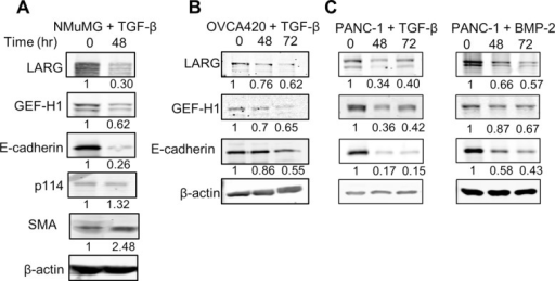 LARG and GEF-H1 expression decreases during EMT. (A, B) Indicated cell lines were treated with 100 pM TGF-β for 48 or 72 h. Cells were then lysed, and protein expression levels were analyzed by Western blot. A representative blot of four independent experiments. (C) PANC-1 cells were treated with 300 ng/ml BMP-2 for 48 and 72 h. Cells were then lysed, and protein expression levels were analyzed by Western blot. A representative blot of four independent experiments.