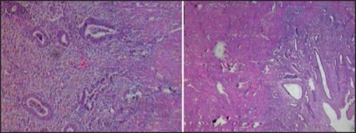Histopathology examination demonstrates trophoblastic invasion into the myometrium