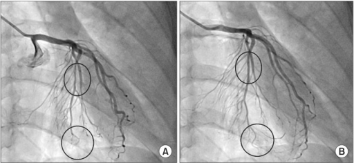 Emergency coronary angiography shows a filling defect in the distal LAD and compression in the mid-LAD (A), which is relieved by intracoronary nitroglycerin injection (B). LAD indicates left anterior descending coronary artery.