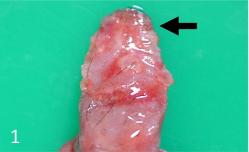 Vesicular or erosive lesions at the tip of the tongue (arrow). Case 1.