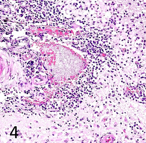 Cerebral meningitis. Inflammatory cells (mainly lymphocytes) infiltrate into themeninges. HE, × 40. Case 1.