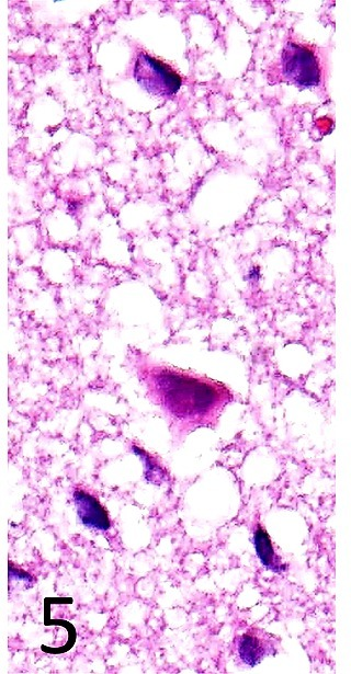 Neuronal cell death in the cerebral cortex. Atrophic neurons with eosinophiliccytoplasm are observed. HE, × 200. Case 1.