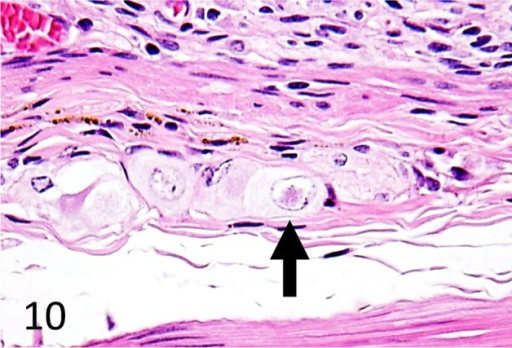 Eosinophilic intranuclear inclusion bodies in the enteric plexus ganglion cells of theinvaginated duodenum. HE, × 400. Case 2.