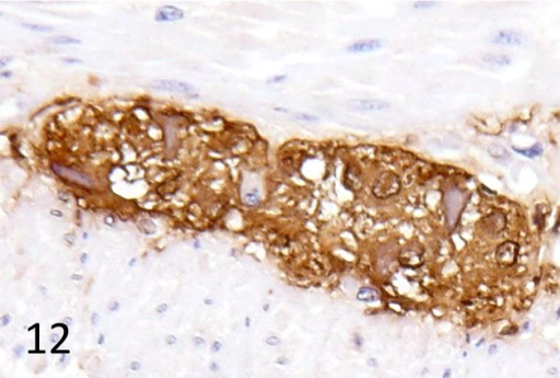 Enteric plexus ganglion cells of the invaginated duodenum are positive for HSV-1antigen. Immunohistochemistry, × 400. Case 2.