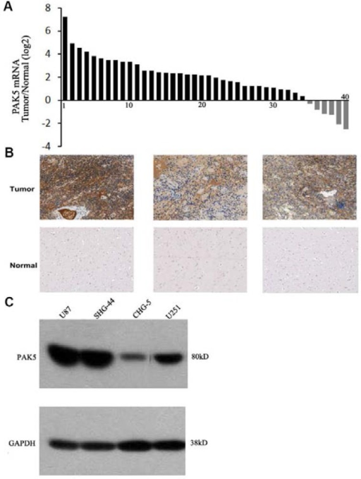 PAK5 is highly expressed in glioma cells. (A) The ratio of PAK5 mRNA expression in freshly sampled gliomas and their adjacent normal tissues from 40 glioma patients. (B) Representative immunohistochemical staining of PAK5 expression in human glioma tissues (upper) and pericancerous tissues (lower). (C) Western blot assay of PAK5 expression in glioma cell lines.