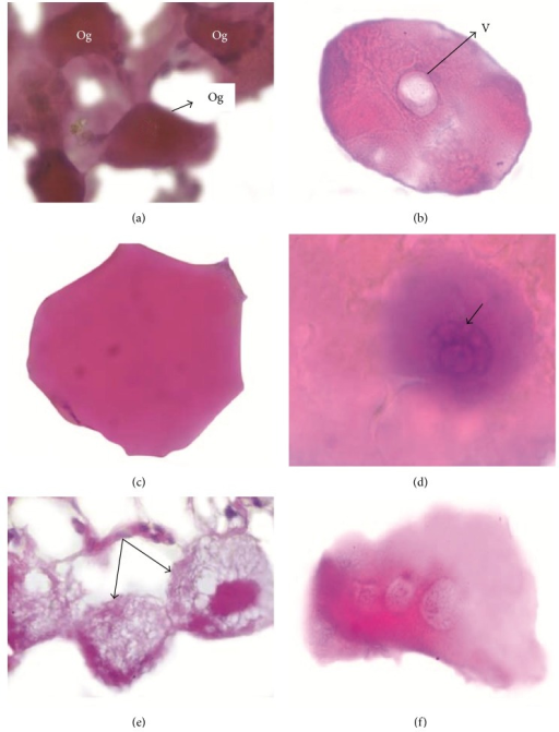Histological details of day wise changes. (a) Partially fed tick oogonia interconnected among themselves. (b) Vacuole inside oocyte. (c) Polymorphic oocytes. (d) Vacuolations in the nucleolus of germ vesicle. (e) Oocyte with amorphous material. (f) Oocyte fused to form a homogenous mass with series of germ vesicle inside. Og: spindle shaped oogonia; V: vacuole. Bars: (a), (d) 100x, (b), (c), (e), (f) 20x.