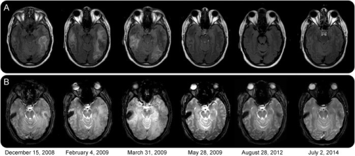 Imaging of disease onset and treatment responseRepeat MRI scans including fluid-attenuated inversion recovery (FLAIR) (A) and T2 fast field echo (B) sequences. All images were acquired on a 3T MRI scanner. Upon initiation of immunosuppressive treatment in April 2009, there was a rapid resolution of FLAIR hyperintensities within 8 weeks. In response to the following maintenance therapy, the number of microbleeds markedly dropped.