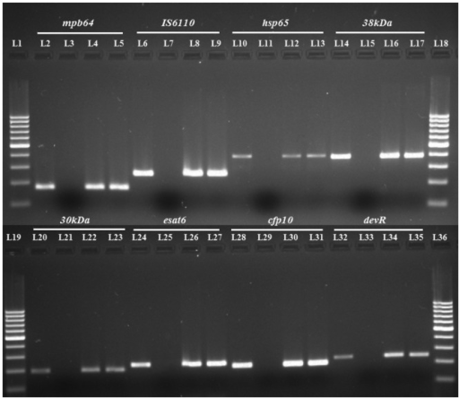 PCR gel picture of several gene targets tested on the same clinical EPTB  specimens. L1