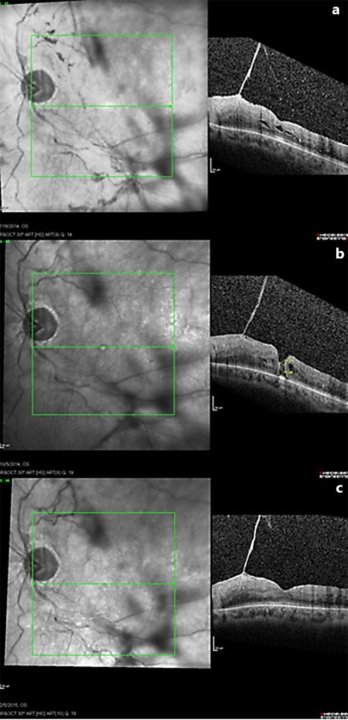 OCT and corresponding scanning laser ophthalmoscopy images OS of initial intraretinal exudate and VMT (a), subsequent FTMH formation (b), and spontaneous macular hole closure with persistent VMT (c).
