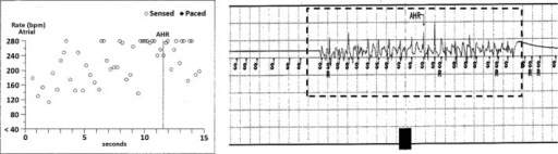 An example of the electrogram recordings from pacemakers interrogated 2 months after the first operation from a group 2 dog on the day without rapid atrial pacing. In the left panel, the atrial rate of >280 bpm is shown as a circle at 280 bpm due to the limited y‐axis scale. Sustained AF is confirmed from the stored electrograms is denoted by the dotted box.