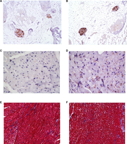 Examples of immunohistochemical (group 1: A and C, group 2: B and D) and trichrome staining (group 1: E, group 2: F) in cardiac ganglia and myocardia. A and B, Choline acetyltransferase (ChAT) staining showing increased cholinergic neural density within ganglia in group 2 (B) than in group 1 (A). C and D, Tyrosine hydroxylase (TH) staining showing increased sympathetic innervation in atrial myocardium in group 2 (D) than in group 1 (C). E and F, Trichrome staining demonstrating similar connective tissue distributions between group 1 (E) and group 2 (F).