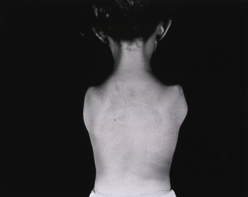 <p>A young girl with both arms amputated at the shoulders stands with her back to the camera.  She wears only undershorts.</p>