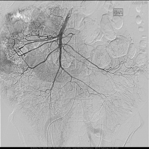 This is the SMA in digital subtraction.  There are no gross abnormalities, but we note its vascular distribution is not in the area of interest.