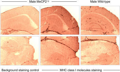 Evaluation of MHC class I expression in adult mouse brain slices.Serial frozen sections of adult male wild-type and MeCP2−/y littermates were analysed for expression of MHC class I by immunohistochemistry using the rat R1-21.2 monoclonal antibody and EnVision detection technology (Dako). For the negative control, the same staining process was used omitting the primary antibody. Similar results were obtained with the M1/42 monoclonal antibody. Similar results were obtained in independent experiments on brains from three different pairs of mice.