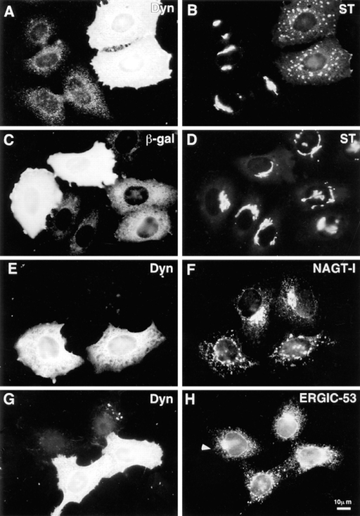 Disruption of exocytic organelles by dynamitin  overexpression. HeLa cells  were transiently transfected  with dynamitin (A, B, E–H)  or β-galactosidase (C and D),  and the distribution of membrane markers in interphase  cells was examined by double-label immunofluorescence  microscopy. (A, C, E, and G)  transfected cells labeled with  antidynamitin (or anti-myc tag,  E) or anti–β-galactosidase  (C). (B and D) ST labeling of  the trans-Golgi and TGN,  showing that dynamitin overexpression disrupts the compact juxtanuclear Golgi complex. (F) NAGT-I labeling of  the medial-Golgi shows disruption similar to ST. (H)  ERGIC-53 labeling of the intermediate compartment between ER and cis-Golgi. Note  that the juxtanuclear accumulation of ERGIC-53 is lost in  the dynamitin-transfected cells,  and that the normal punctate cytoplasmic fluorescence  is somewhat exaggerated in  dynamitin overexpressors.