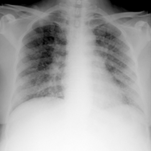 Chest radiograph showing diffuse nodular and patchy pulmonary infiltrates, and right hilar widening.