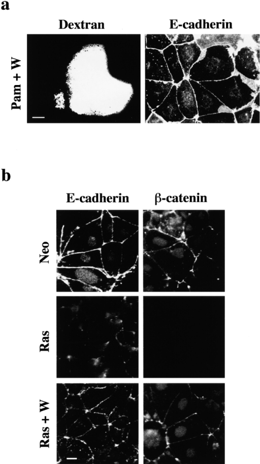 Inhibition of PI3K activity prevents E-cadherin/catenin complexes disassembly induced by V12Ras. (a) Confluent patches of Pam212 cells were preincubated with the PI3K inhibitor wortmannin (200 nM) for 30 min, microinjected with V12Ras (0.5 μg/μl), and after 3 h, fixed in methanol. Cells were stained for E-cadherin, and microinjected cells were identified by coinjection of dextran–Texas red. (b) Control PamNeo (top, Neo) or PamV12Ras (middle and bottom, Ras) cells were extracted in NT buffer for 15 min on ice, fixed in 3.7% formaldehyde, and stained for E-cadherin (left) or β-catenin, using mouse mAb (right). PamV12Ras cells showed in the bottom were preincubated with the PI3K inhibitor wortmannin (Ras+W) for 1 h before NT buffer extraction. The nuclear staining detected with β-catenin is background staining because of nonspecific binding of the BODIPY-conjugated anti–mouse IgG observed after detergent extraction. Both E-cadherin and β-catenin are redistributed to the detergent soluble fraction in V12Ras-expressing cells and this solubilization is blocked after inhibition of PI3K activity in those cells. Images were obtained in an Axiophot microscope. Bars, 10 μm.