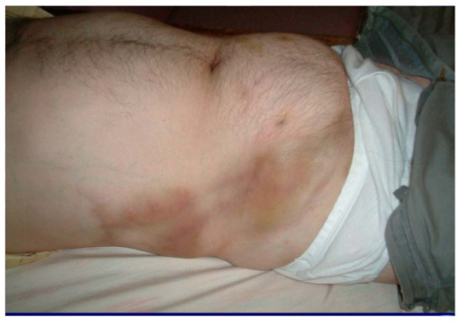 with bruising and thrombosed large abdominal veins  lower quadrantThrombosed Vein