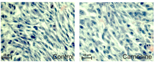 Microscopic images from tumors stained with Hematoxylin-Eosin from an animal treated with carnosine (right) and from a control animal treated with NaCl solution (left). Many mitotic figures are seen in the tumor from the non-treated animal compared to the tumor from the treated animal. Pictures were taken at an original magnification of 400×.