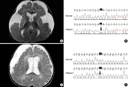 Magnetic resonance imaging (MRI) findings and GCDH gene mutational analysis of two patients. (A) MRI of the patient 1. A T2-weighted axial image showing a large amount of subdural fluid collection with frontotemporal atrophy and high signal intensity in both basal ganglia. (B) A novel mutation from the patient 1. c.658G>T, heterozygote, p.Asp220Tyr. (C) MRI of the patient 2. Asymmetric subdural fluid collection suggesting hemorrhage with mild mass effect on a T2-weighted axial image. (D) A novel mutation from the patient 2. c.478C>T, heterozygote, p.Q160X.