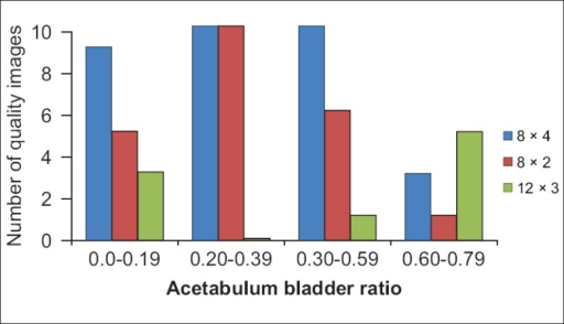 Relationship between iterations and subsets used for reconstruction versus Acetabulum/Bladder (A/B) ratio