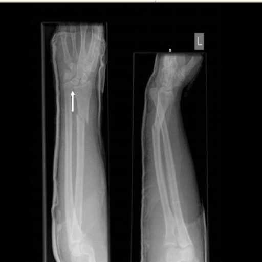 Radiographs at initial presentation show a comminuted fracture of the right radial shaft (junction of middle and distal thirds) and distal radioulnar joint (DRUJ) dislocation but no evidence of elbow dislocation.