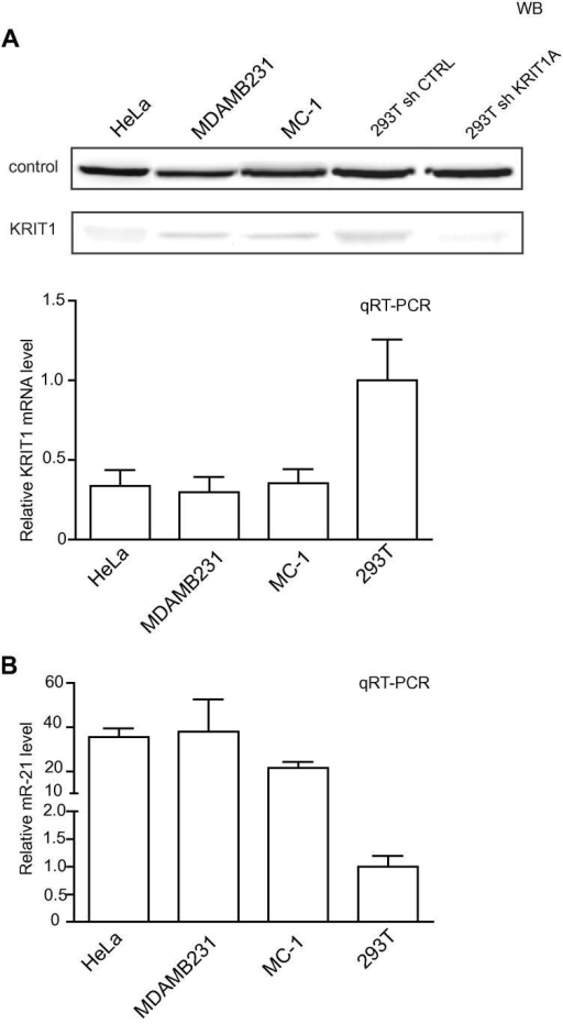 KRIT1 and miR-21 expression in tumor cell lines. KRIT1 (A) and miR-21 (B) expression was evaluated in HeLa, MDAMB231, MC-1 and 293T (wild type or silenced-sh- for KRIT1 and its sh-control-ctrl) human tumor cells by Western Blot (WB) and qRT-PCR analyses. An aspecific band was used as loading control in WBs as in [22]. For the qRT-PCRs, results are shown as fold changes (mean ± SEM) relative to expression in 293T cells, normalized on GAPDH for KRIT1 or U6 for miR-21 levels. Two independent analyses were performed in triplicate and a representative one is shown.