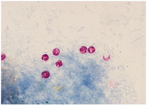 Representative bright field microscopic pictures for the Cryptosporidium oocysts stained with modified Ziehl-Neelsen dye with ×200 magnification.