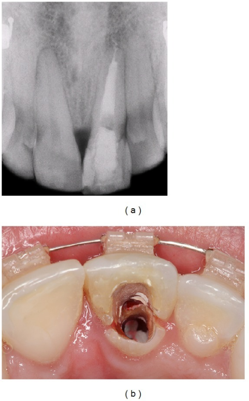 Radiographic and clinical images showing the endodontic retreatment, with the installation of an intracanal pin and temporary crown placement.