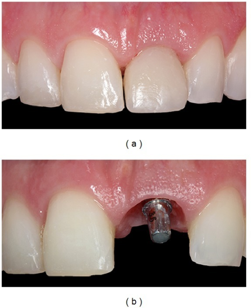 Images showing the provisional crown, restoring the maxillary right central incisor and gingival tissue after four months.