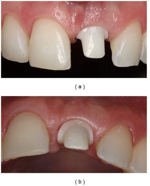 Buccal and occlusal views, showing the custom abutment in zirconia with a CAD/CAM system.