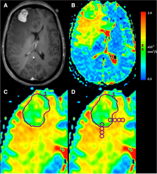 "Measurement of ADC metrics from brain metastases on diffusion-weighted MRI scans. A patient with a history of lung adenocarcinoma presents with headache and focal neurological deficit. A. Postcontrast T1-weighted sequence demonstrates a right frontal lesion, which was confirmed as a metastasis after excision. B. An ADC map is generated from B = 0.1000 images using post processing software. On this color map, blue areas represent low ADC and red higher ADC. C. A freehand region of interest is traced around the tumor border using the postcontrast T1-weighted sequence as reference on the axial slice with the largest tumor area and those immediately above and below. The ADCmin is the lowest bin of a histogram of ADC values for all pixels contained within this ROI, averaged over these three slices. Three ROI are placed within the tumor on the axial slice with the largest area, avoiding necrosis, haemorrhage, cyst and the mean taken to give ADCmean. D. To assess change of ADC across the tumor border, four ROI are placed starting just inside the tumor border and extending out into the peritumoral region. The slope of the four ADC values is taken as the ""ADC transition coefficient"" or ATC. This is repeated in 3 orthogonal directions, avoiding structures such as ventricle or falx and then repeated on two slices above and below, with the ATC being the mean of the 9 readings."