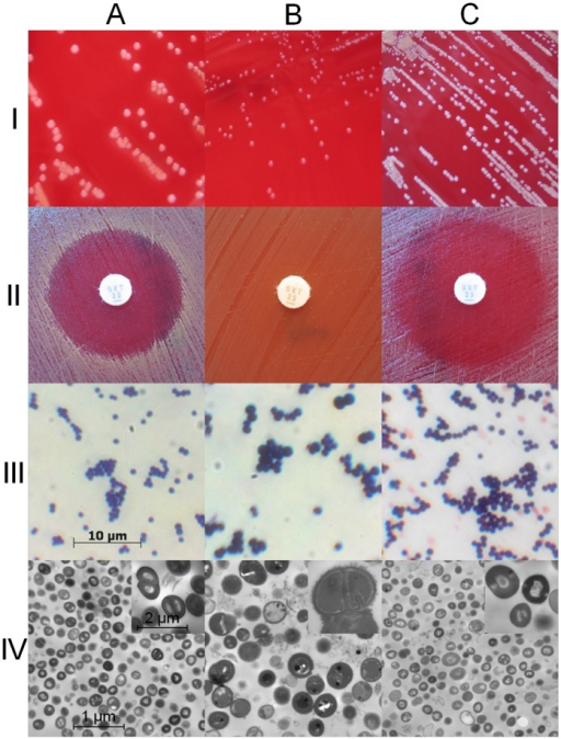 Characteristics and phenotypes of S. aureus SH1000 wild type, ΔthyA mutant, and complemented mutant. Phenotypes of the wild-type strain SH1000 (A), the ΔthyA mutant (B), and the complemented mutant (C) are shown on Columbia blood agar (row I). Susceptibility testing for TMP-SMX was performed on Columbia blood agar (row II). Light microscopy (row III) and transmission electron microscopy (row IV) revealed the typical features of the respective strains.
