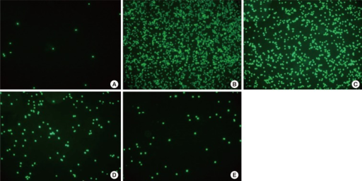 Lovastatin suppression of eosinophil adhesion to BEAS-2B cells. HL-60 cells were treated with calcein AM and applied to BEAS-2B cell cultures. Results were observed using fluorescence microscopy. Note the adherence of HL-60 cells to normal (A) and TNF-α-activated BEAS-2B cells (B). Pretreatment of HL-60 cells with 10 µM (C), 20 µM (D), and 40 µM (E) of lovastatin reduced the adherence of HL-60 cells to BEAS-2B cells in a dose-dependent manner.