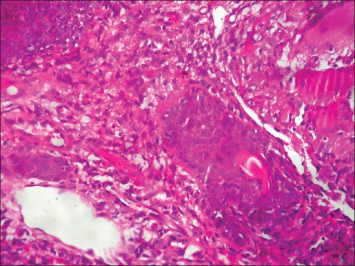 Epitheloid cell granuloma composed of langhans type of giant cells (H and E, ×40)
