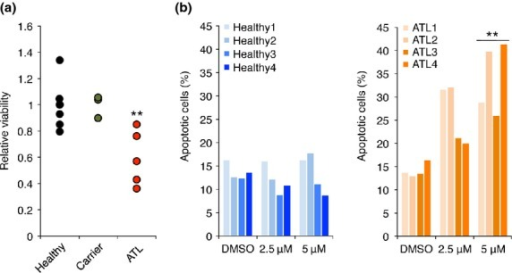 GANT61 treatment reduced cell viabilities of primary ATL samples. (a) Effect of GANT61 in primary PBMC samples. The PBMC from healthy donors (n = 7), asymptomatic carriers (n = 3) and ATL patients (n = 5) were exposed in 5 μM of GANT61 for 72 h. Cells were maintained in media with 1% self-serum. **P < 0.01. (b) GANT61-dependent apoptosis in ATL samples. The PBMC from healthy donors (n = 4) and ATL patients (n = 4) were treated with 5 μM of GANT61 for 72 h. Graphs show percentiles of apoptotic popula-tion in CD4+ cells **P < 0.01.