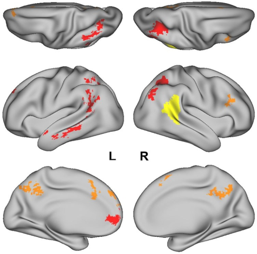 "The posterior superior temporal sulcus (pSTS) region-of- interest (ROI) obtained from the Atlas of Social Perception (Engell and McCarthy, 2013) for the ROI-based MVPA is displayed in yellow. Clusters of searchlight centers with significant four-way classification of the ""Preference"" trials in the whole-brain searchlight analysis are displayed in red and orange. Regions in red (i.e., L IPL/IPS, R IPS, amPFC, L MTG, and L ATL) had confusion matrices in which the diagonal elements had the highest numerical value in each row."