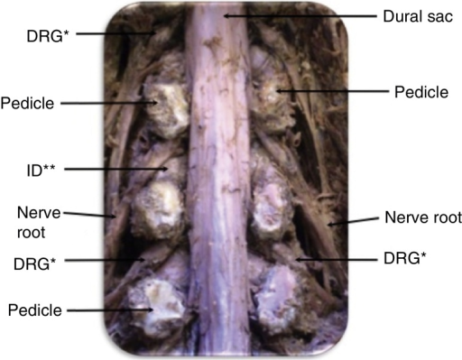 Anatomical exposure of the nerve root, intervertebral disc (ID), dorsal root ganglion (DRG), pedicle and dural sac.
