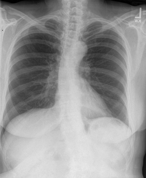 Frontal and lateral chest on XXXX at XXXX.