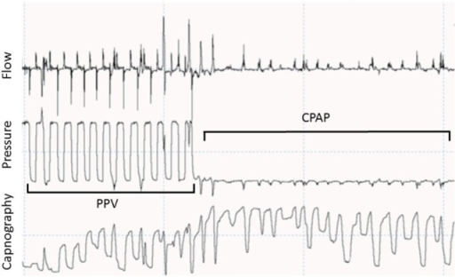 Recording showing a respiratory tracing showing flow, pressure, and capnography in waveforms. During positive pressure ventilation (PPV), CO2 goes back to 0 during most of the inflations. During spontaneous breathing in continuous positive airway pressure (CPAP) CO2 does not go back to 0 due to small tidal volumes and stasis in the sensor.