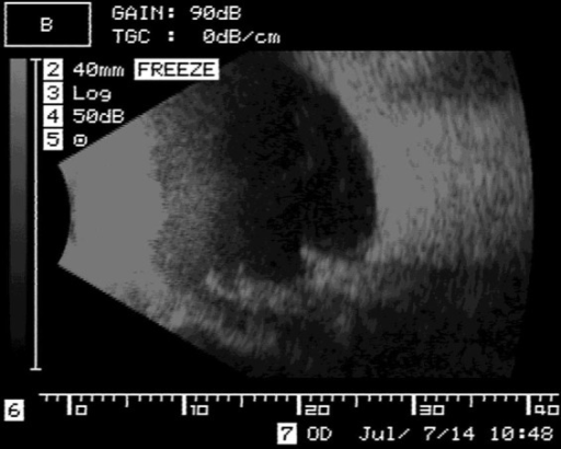 B-mode ultrasound scan of the patient's left eye. A high-luminance image on the edge of the buckle protrusion with an acoustic shadow can be seen.
