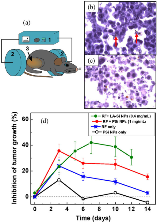 In vivo assessment of the efficiency of RF radiation-based hyperthermia using Si-based nanosensitizers.(a) Schematics of the RF radiation-based therapy setup: (1) is a RF radiation source, (2) are the RF electrodes, (3) is a mouse having a tumor area. This Figure was created by the authors; (b) and (c) are histology images of a tumor area 1 h and 3 days after the PSi NP injection and RF-based treatment using PSi NPs as nanosensitizers, respectively. Cancer cells are visible as dark blue spots. Examples of agglomerations of PSi NPs in the cells are indicated by red arrows. (d) Inhibition of the tumor growth after the following treatments: the injection of Si NPs suspension without RF irradiation (black curve); 2 min treatment of tumor area by RF irradiation with the intensity of 2 W/cm2 (blue); injection of a suspension of PSi NPs (0.5 mL, 1 mg/mL) followed by 2 min RF irradiation treatment (red); injection of a suspension of LA-Si NPs (0.2 mL, 0.4 mg/mL) followed by 2 min RF irradiation treatment (green).