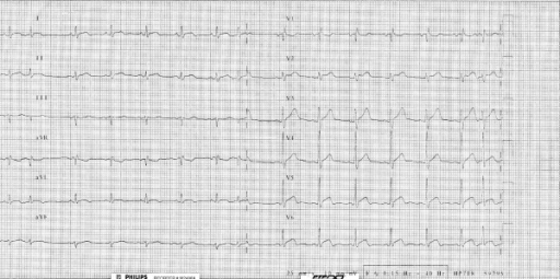The 12-lead electrocardiogram showed persistent ST-T segment elevation in the infero-lateral leads, supraventricular premature complexes and incomplete right bundle branch block. This ECG may identify either a non-q myocardial infarction or pericarditis.
